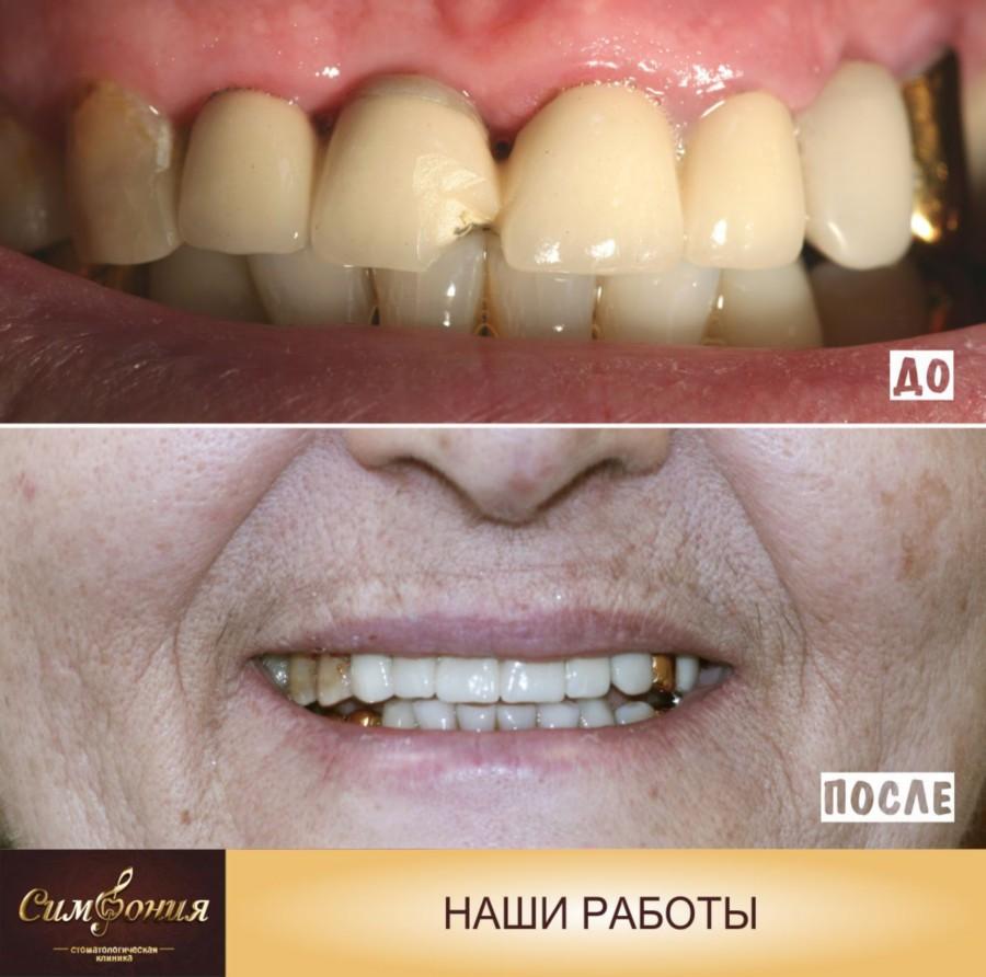 безметалловая керамика на оксиде циркония, фото зубов до и после