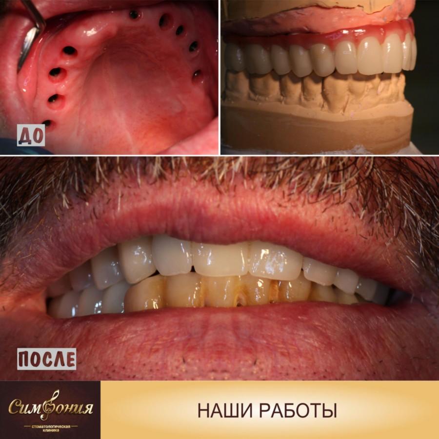 Виниры на огнеупорной модели, Фото зубов до и после, стоматология Кубани Симфония