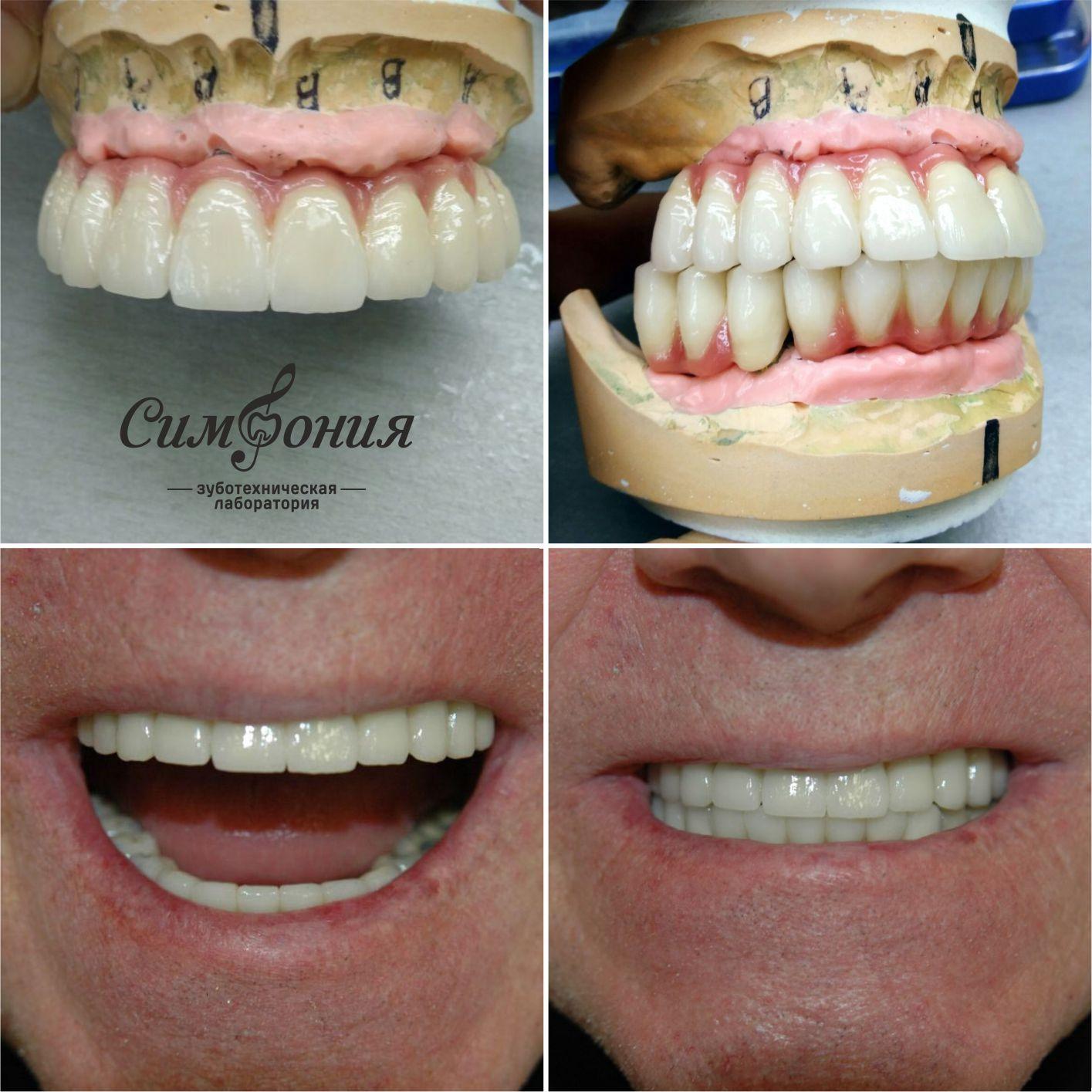имплантация зубов, имплантация зубов в краснодаре