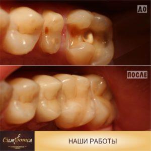Вкладка из прессованной керамики e-max, Фото зубов до и после